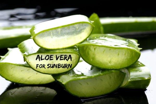 aloe-vera-for-sunburn
