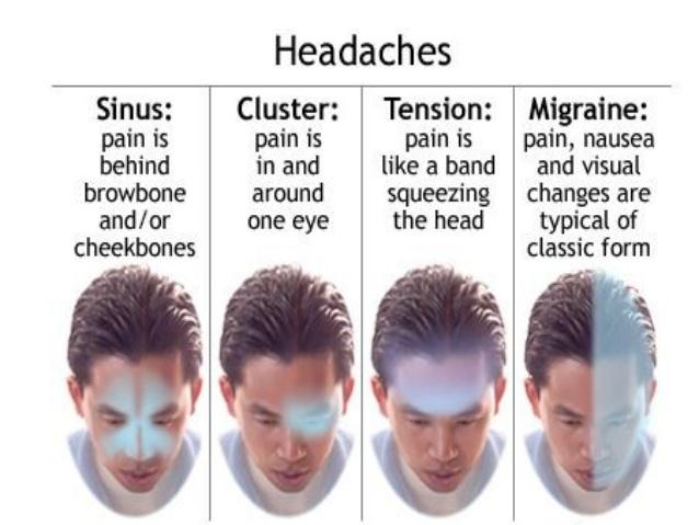 migraine-5-638