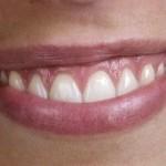 periodontitis-gingvitis-gum-disease-150x150